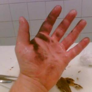 Gyógyult égési sérült kéz - energiagyógyászat