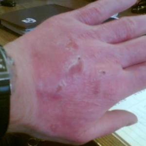 Gyógyul égési sérült kéz